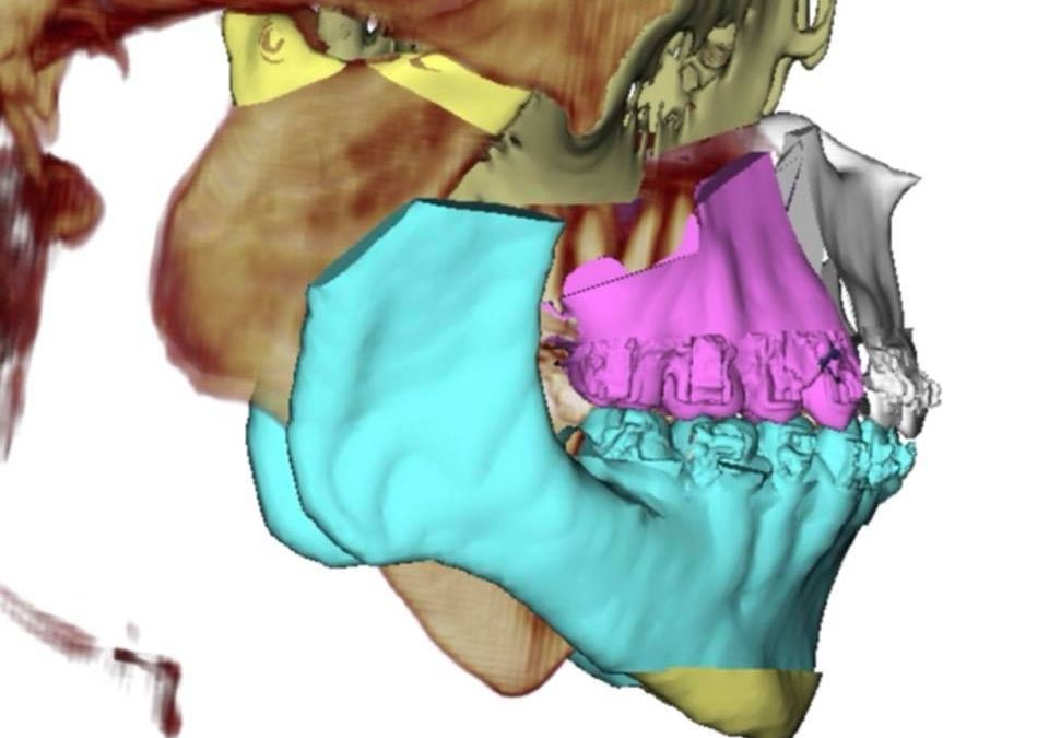 Caso de artrite reumatóide com reabsorção total condilar