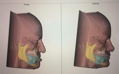 Fechando mais um Módulo da Turma 15 de cirurgia Ortognática!